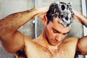 how to treat scalp fungus