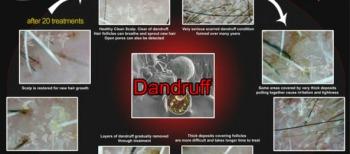 SG Laofoye Hair Dandruff Treatment