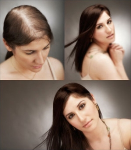 hair-loss-in-women-2