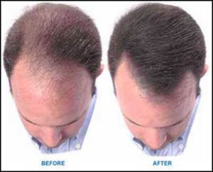 reverse-hair-loss-naturally